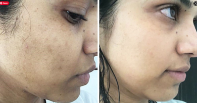 How To Remove Blemishes on face and body
