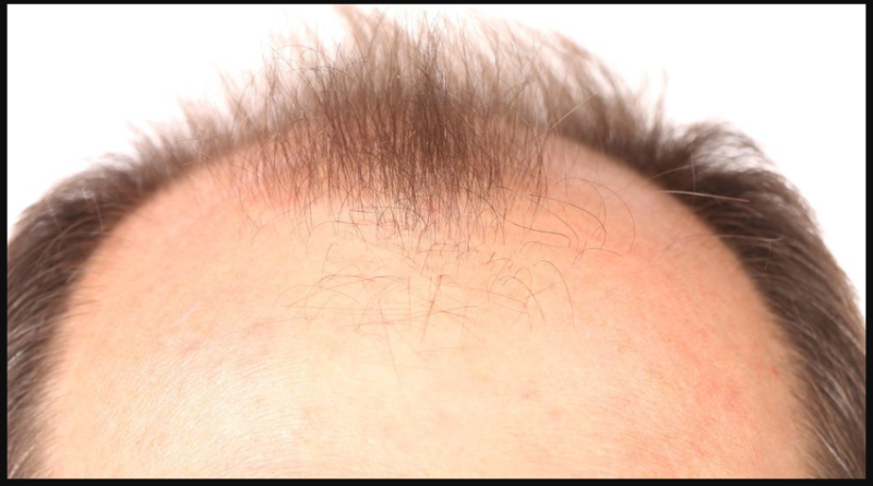 How to stop hair loss? (Secret Tricks)