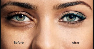 How to remove dark circles under eyes permanently