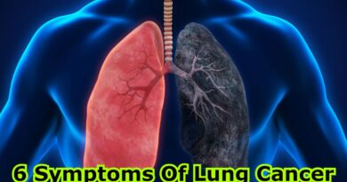 symptoms of lung cancer in females, 4 symptoms of lung cancer that you should be aware of, stage 1 lung cancer symptoms, what is usually the first sign of lung cancer, causes of lung cancer, early signs of lung cancer, 7 signs of lung cancer, early symptoms of lung cancer in non smokers