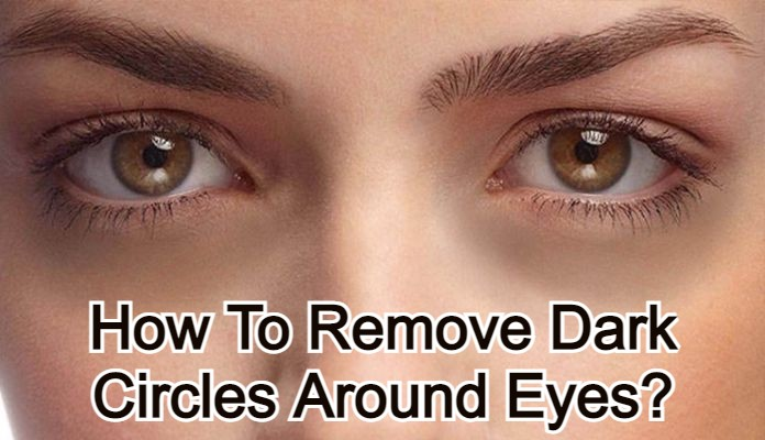 How To Remove Dark Circles Around Eyes?