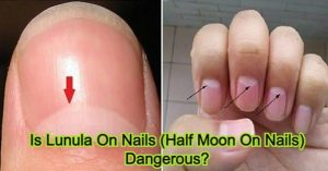 Is Lunula On Nails (Half Moon On Nails) Dangerous?