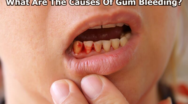 What Are The Causes Of Gum Bleeding?