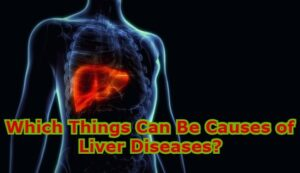 Which Things Can Be Causes of Liver Diseases?