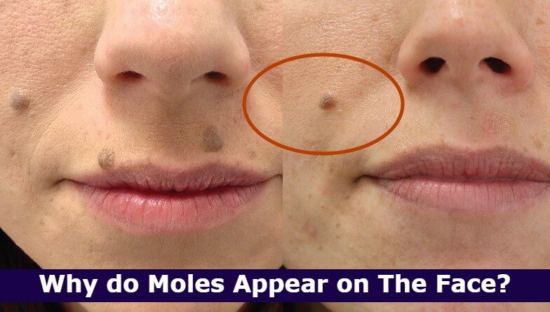 Why do Moles Appear on The Face?