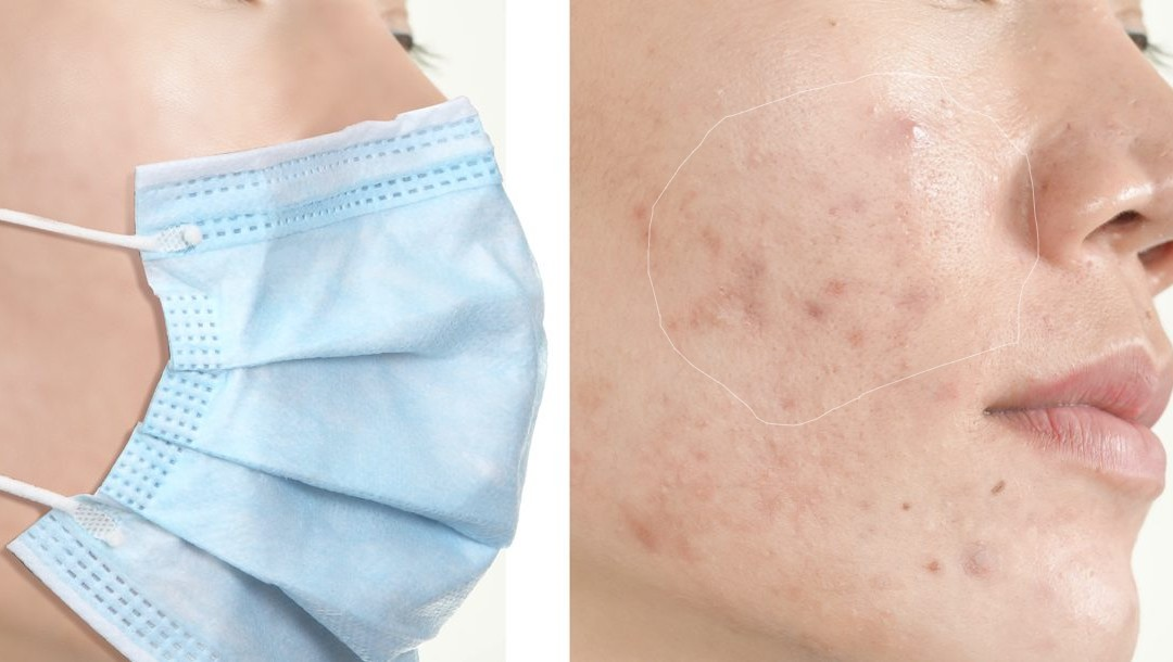 How To Prevent Face Mask Acne? [Problem Solved!]
