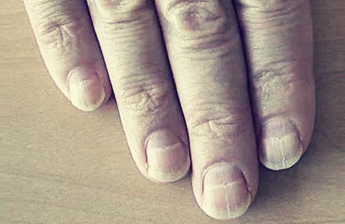 Black Lines In Nails Can Be Symptoms Of COVID 19?
