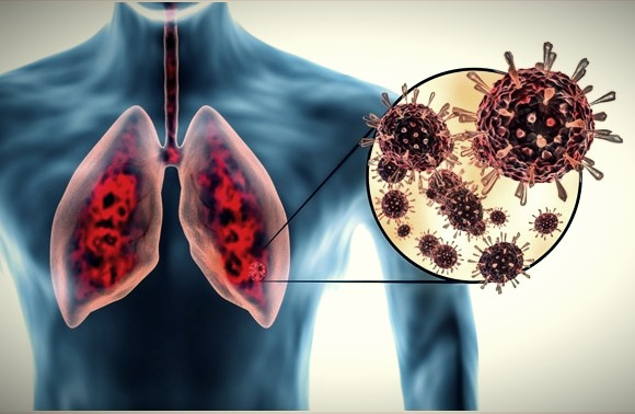 Coronavirus (COVID 19) Can Damage Your Lungs For a Long Time