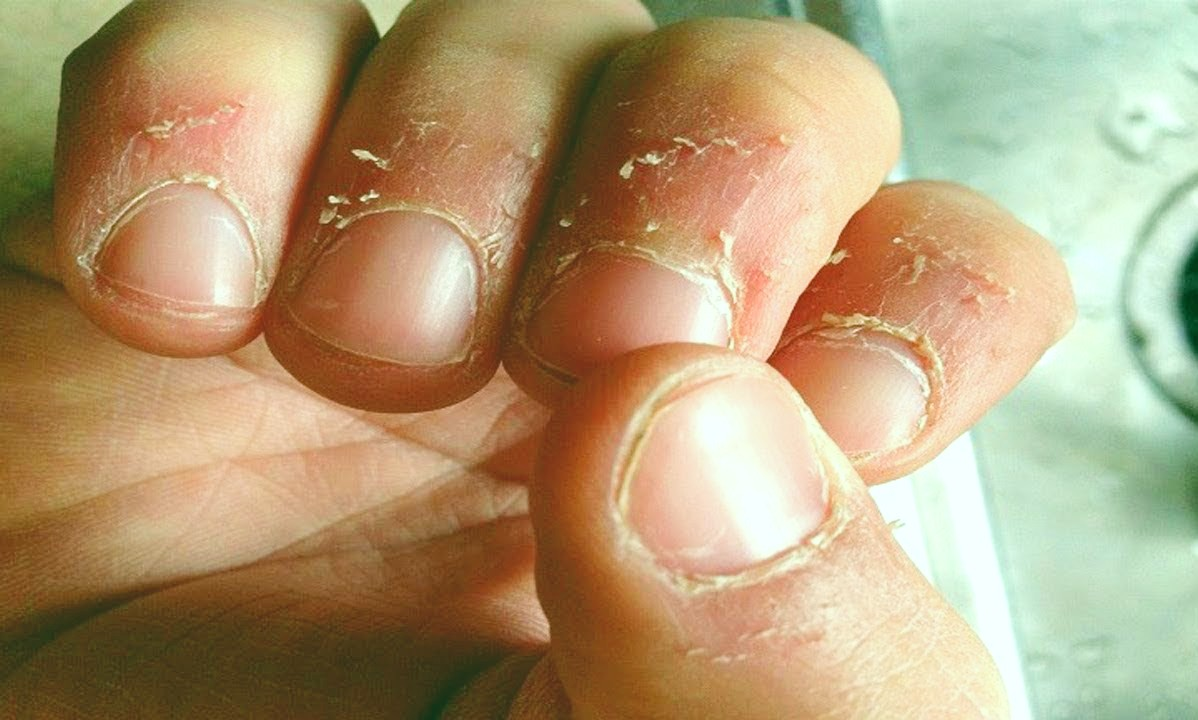 Causes of Hangnail
